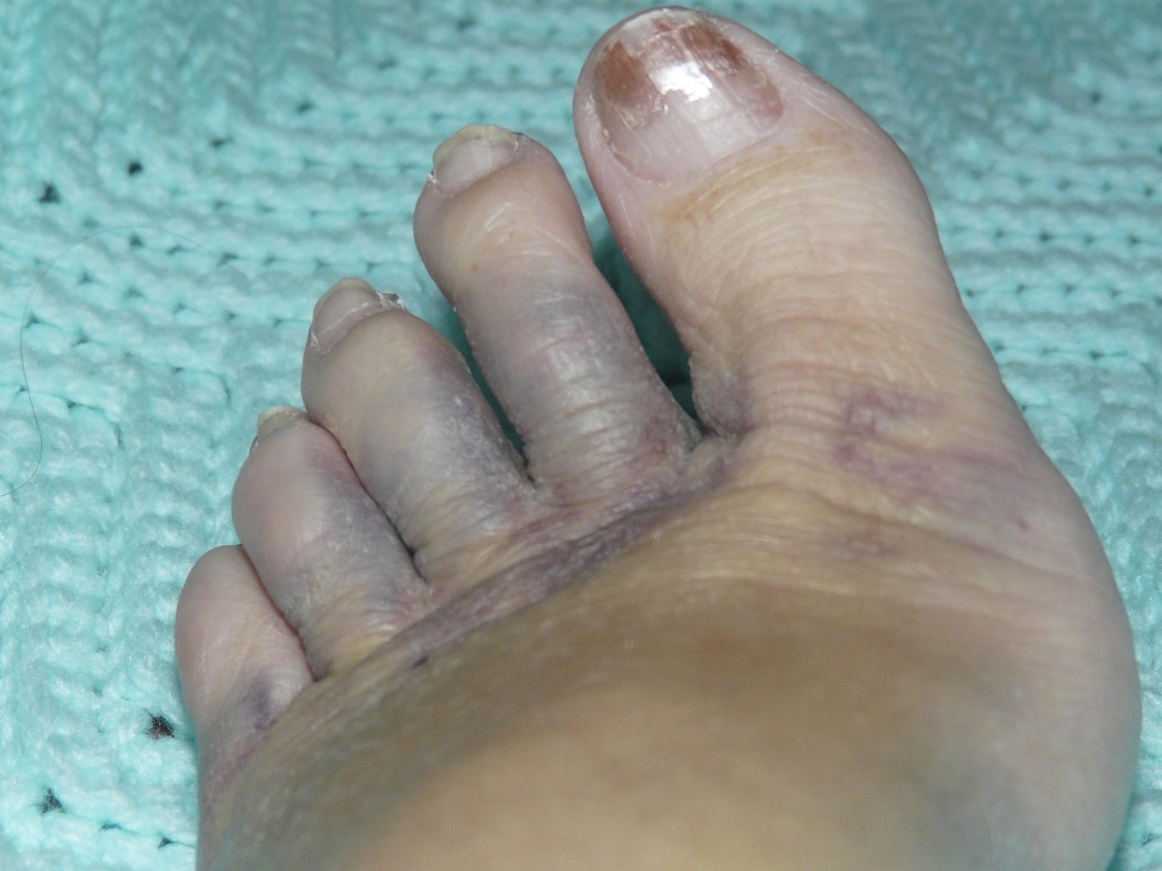 poorfoot jpg